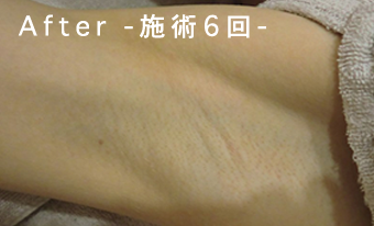 Before-施術6回-
