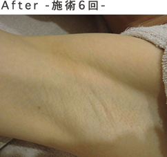 after-施術6回-