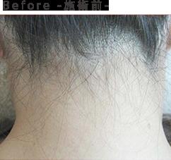 Before-施術前-